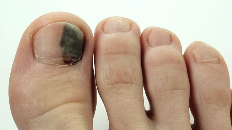 Bỗng dưng thấy bàn chân thay đổi theo 3 cách này, coi chừng bệnh ung thư đang phát triển trong cơ thể, cần lập tức đi khám - Ảnh 3.