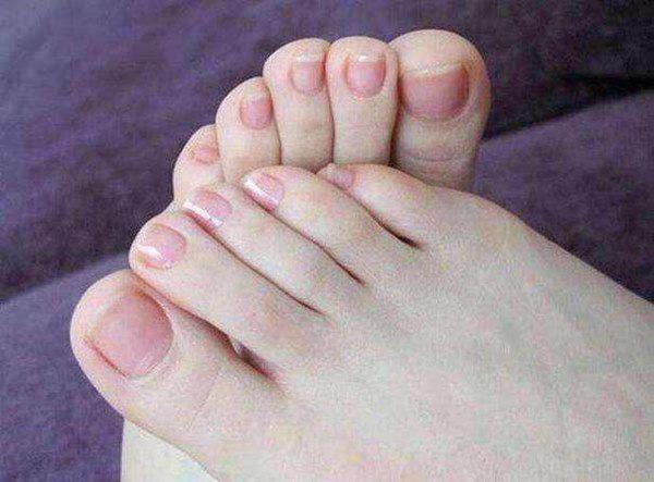 Bỗng dưng thấy bàn chân thay đổi theo 3 cách này, coi chừng bệnh ung thư đang phát triển trong cơ thể, cần lập tức đi khám - Ảnh 1.