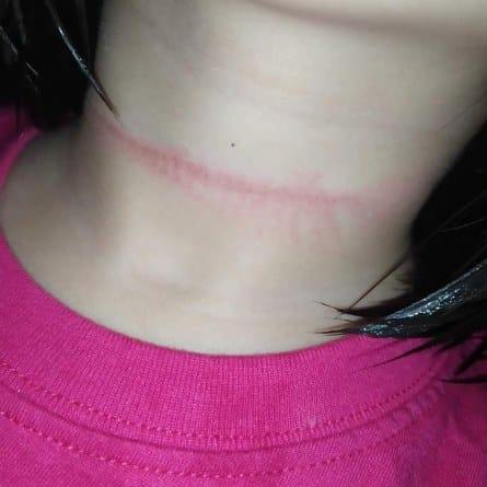 Bé gái 4 tuổi suýt mất mạng khi cố treo cổ tự tử theo một thử thách trên Tiktok  - Ảnh 1.