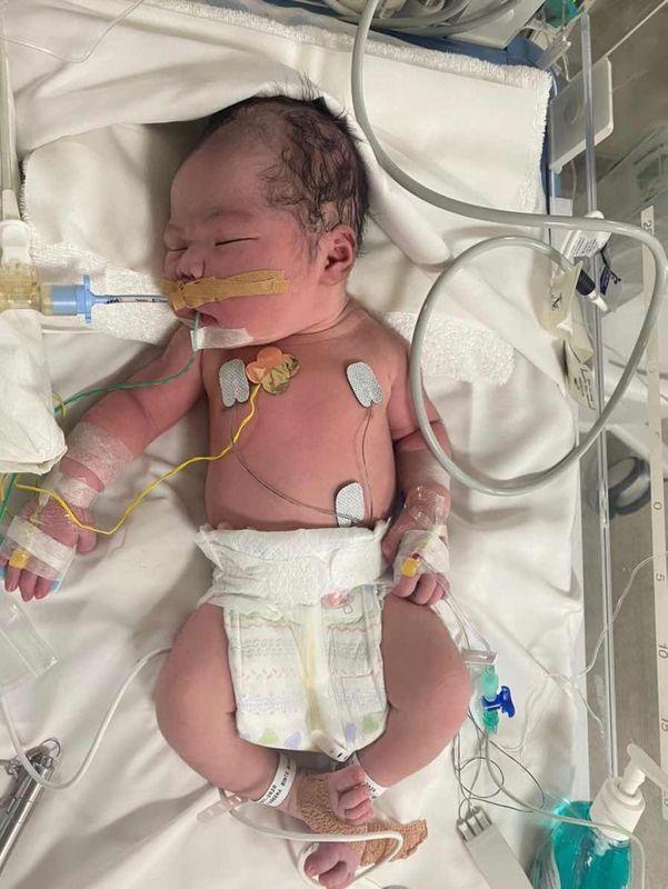 Vỡ ối một ngày rồi mà tử cung chỉ mở 3 phân, bà mẹ vẫn kiên định chờ sinh thường khiến tim thai nhi ngừng đập  - Ảnh 1.