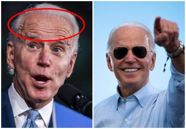 """76 tuổi vẫn phong độ lịch lãm, ông Joe Biden để lộ bằng chứng nhiều lần phẫu thuật để """"níu kéo tuổi xuân"""" từ cấy tóc, căng da đến cắt mí - Ảnh 4."""