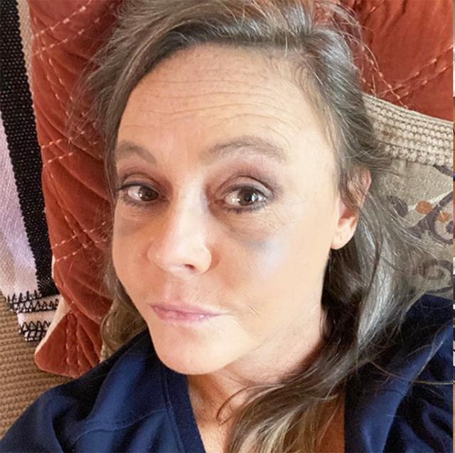 Người phụ nữ này tưởng mình bị sưng mắt do dị ứng nhưng hóa ra đó lại là triệu chứng của bệnh nhãn giáp - Ảnh 3.