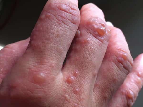 """Tiểu đường đang """"rình rập"""" trong cơ thể nếu bạn có một trong 6 dấu hiệu này trên da:  Đa phần hệt như viêm da thường thấy khiến nhiều người chủ quan - Ảnh 2."""