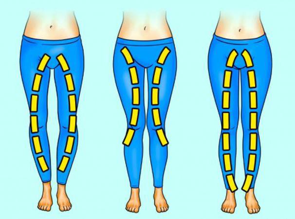 """3 kiểu quần """"tủ"""" cho 3 nhược điểm đôi chân - Ảnh 1."""