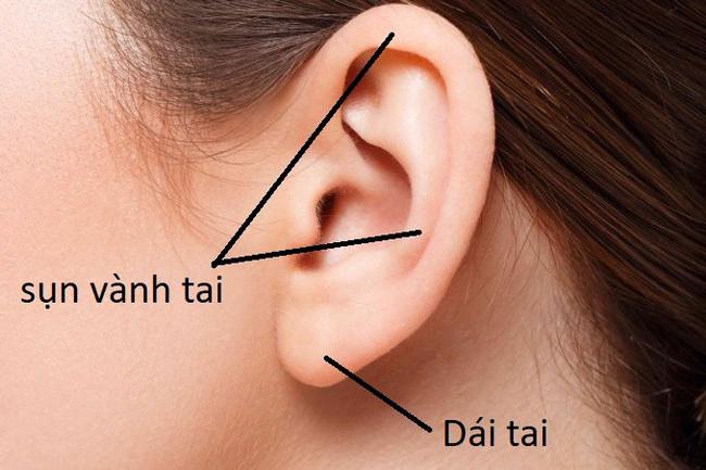 Sẹo đùn kín tai sau khi nâng mũi bằng sụn tai, nhiều chị em nhìn kinh hãi nhưng nhận định của chuyên gia mới đáng để tâm! - Ảnh 5.