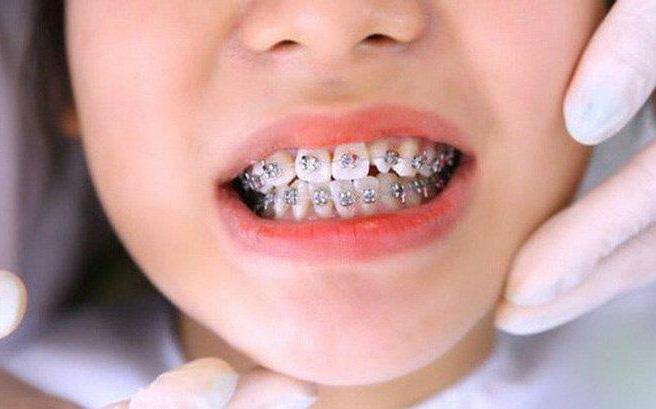 4 điều ba mẹ cần làm nếu muốn con niềng không phải nhổ răng