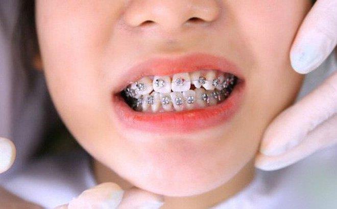 4 điều ba mẹ cần làm nếu muốn con niềng không phải nhổ răng - Ảnh 1.