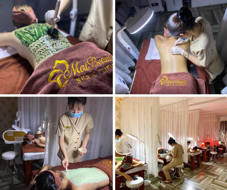 Khổ sở với mụn lưng chi chít, chị e có thể tới gặp ngay chuyên gia mụn lưng tại Sài Gòn – Maibeauty Spa & Clinic - Ảnh 3.