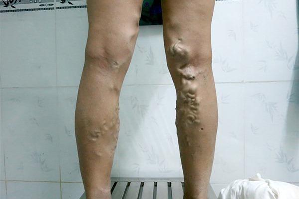 Mặc quần chật, đi giày cao gót: Thói quen gây ra căn bệnh chết người ở phụ nữ - Ảnh 1.