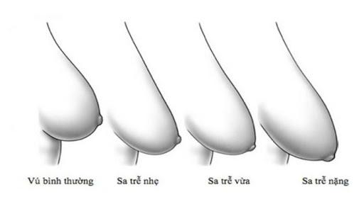 Treo ngực sa trễ: Chuyên gia tiết lộ từ A đến Z, đáng lưu tâm nhất là phẫu thuật có để lại sẹo hay không - Ảnh 2.