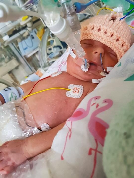"""Căn bệnh """"kì lạ"""" khiến trẻ mới sinh ra đã lão hóa như người già, bé gái 2 tuổi nặng chưa đầy 7kg - Ảnh 1."""