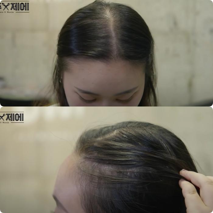 """Hair stylist người Hàn bày cách """"cứu rỗi"""" mái tóc mỏng dính lộ cả mảng ra đầu: Chị em tự làm ở nhà ngon ơ mà chẳng cần ra tiệm - Ảnh 1."""