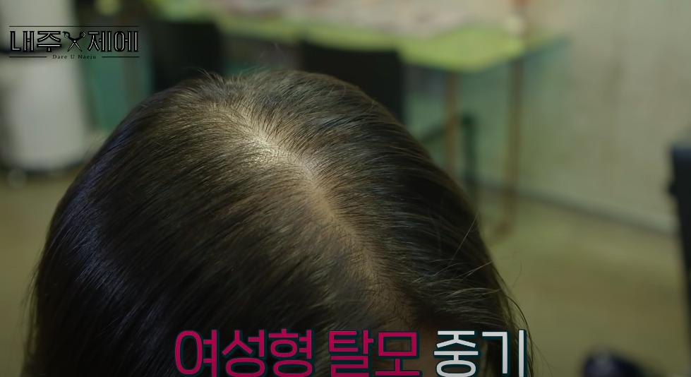 """Hair stylist người Hàn bày cách """"cứu rỗi"""" mái tóc mỏng dính lộ cả mảng ra đầu: Chị em tự làm ở nhà ngon ơ mà chẳng cần ra tiệm - Ảnh 2."""