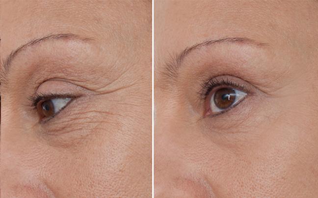 Căng da mặt mini - Cứu tinh cho chị em có làn da mới bị lão hóa, nhất là trường hợp giảm cân nhanh, đột ngột - Ảnh 4.