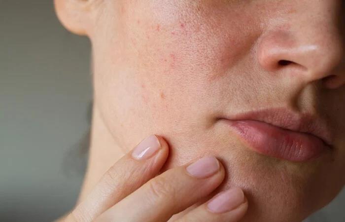 Da vẫn khô, cakey xấu xí dù dưỡng ẩm nhiều: dấu hiệu lão hóa đầu tiên bạn cần để tâm - Ảnh 3.