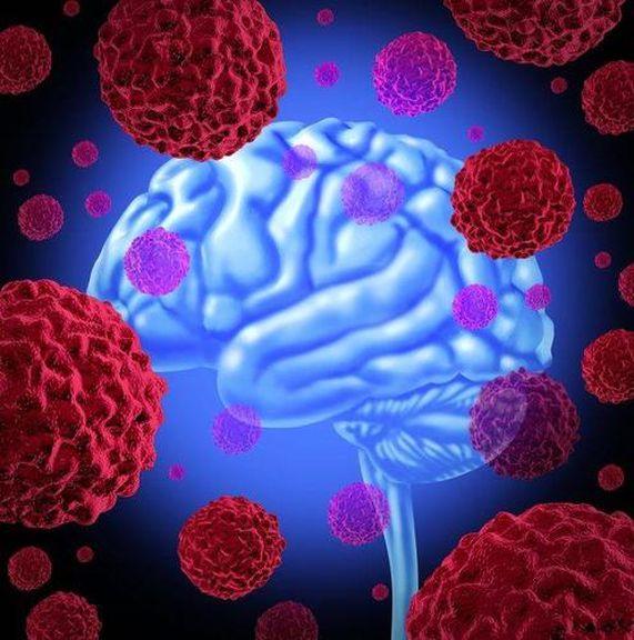 Ung thư không khủng khiếp, điều khủng khiếp là tế bào ung thư sẽ di căn, cơ thể xuất hiện 4 hiện tượng này, đi khám ngay lập tức - Ảnh 1.