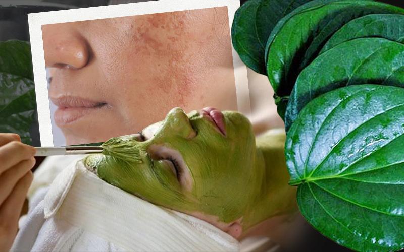 """Dùng lá trầu không trị nám da: Chuyên gia cảnh báo hành động này chẳng khác gì đang """"bức tử"""" làn da"""