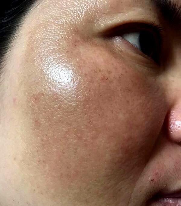 Trị nám bằng laser: Chuyên gia tiết lộ quy trình thực hiện, điều đặc biệt được hé lộ sau khi trị bệnh xong - Ảnh 1.