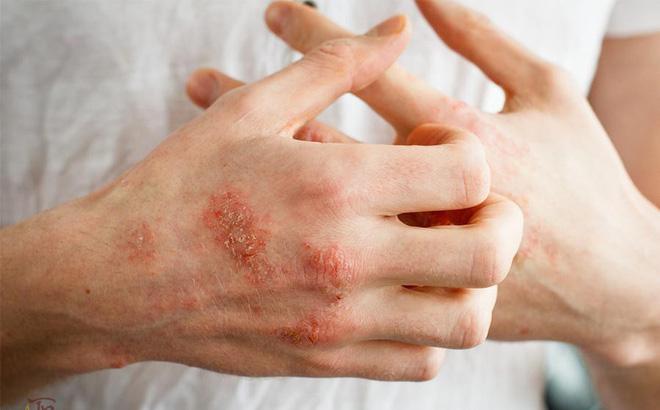 Bất luận là nam hay nữ, nếu thấy cơ thể có 3 dấu hiệu bất thường này nghĩa là axit uric quá cao, cần phải cảnh giác! - Ảnh 1.
