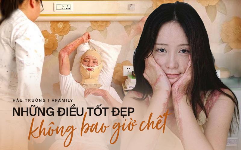 Bộ ảnh gây chấn động xứ Trung của người mẫu trẻ bị bạn cùng lớp thiêu sống vì từ chối tình yêu