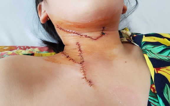 Cảnh báo nhiều trẻ nhập viện do tai nạn thương tích trong sinh hoạt tại gia đình