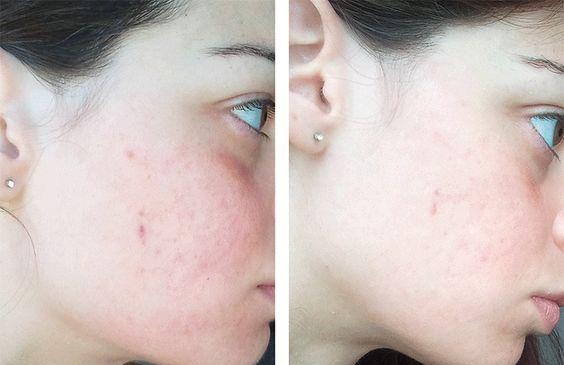Kinh nghiệm skin care tuổi 30 của tôi: Không bao giờ dùng duy nhất một loại toner và loại nào cũng dưới 300k - Ảnh 3.