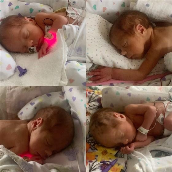 Bất chấp tỷ lệ hiếm gặp 1/15 triệu ca sinh, bà mẹ vẫn sinh hạ thành công 4 cô con gái giống nhau như đúc - Ảnh 1.