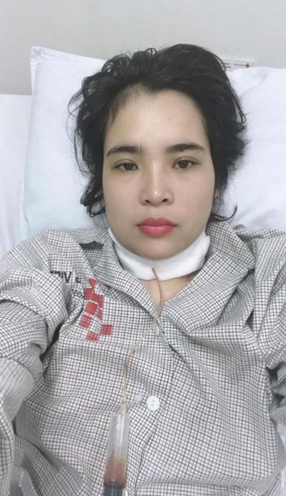 Cận cảnh ca phẫu thuật u cuộn cảnh: Khối u lành tính, hiếm gặp nhưng vô cùng nguy hiểm tại Việt Nam - Ảnh 3.