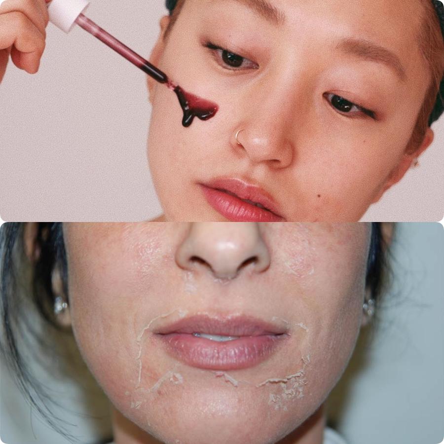 3 bước skin care nhất định phải thực hiện vào buổi tối, nếu không cứ xác định da xấu vô phương cứu chữa - Ảnh 4.