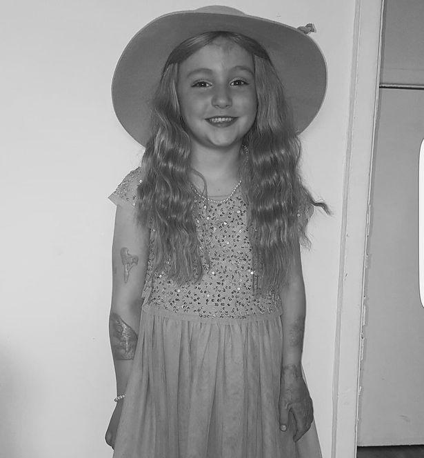Bé gái 5 tuổi ngã vào nồi dầu nóng 190 độ C khi đang chơi cùng em gái khiến cơ thể bị bỏng nặng 38% - Ảnh 9.