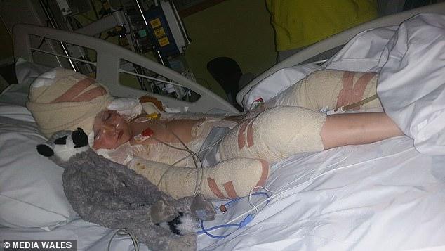 Bé gái 5 tuổi ngã vào nồi dầu nóng 190 độ C khi đang chơi cùng em gái khiến cơ thể bị bỏng nặng 38% - Ảnh 1.