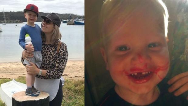 Gửi con đi nhà trẻ, bà mẹ đón con về thấy con bị mất răng - Ảnh 1.