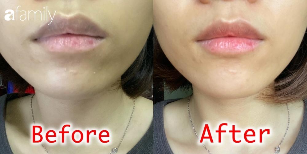 Tranh thủ rảnh rang, tôi thử bôi kem mắt để trị thâm môi và kết quả thật  - Ảnh 2.