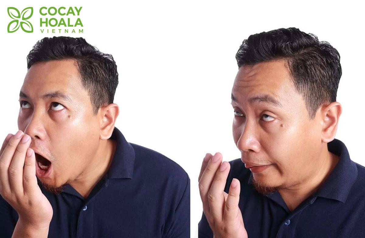 Điểm mặt 5 thủ phạm gây hôi miệng mà bạn không ngờ tới và cách khắc phục hơi thở có mùi - Ảnh 1.
