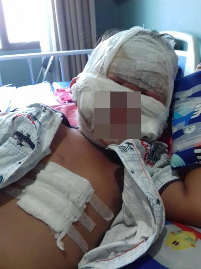 Từ vụ bé gái bỏng nặng vì nước rửa tay khô, dừng ngay việc làm này khi dùng để phòng COVID – 19