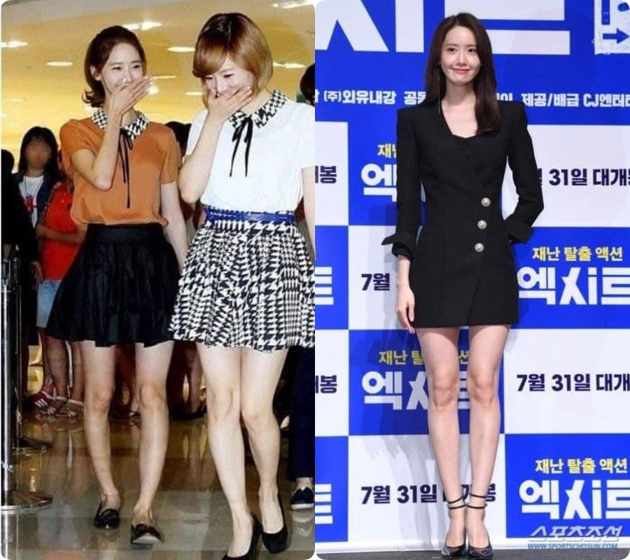 Yoona từng biến chân vòng kiềng thành thon dài thẳng tắp  - Ảnh 2.