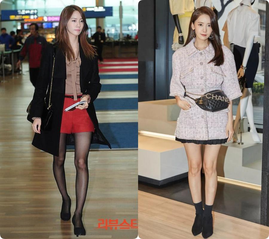 Yoona từng biến chân vòng kiềng thành thon dài thẳng tắp  - Ảnh 1.