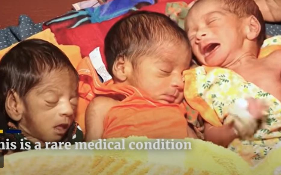 Vừa sinh con được 26 ngày, bà mẹ lại bị chảy nước ối, các bác sĩ choáng váng khi tiếp tục đón thêm một cặp song sinh nữa chào đời