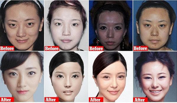 Ngành công nghiệp sắc đẹp Trung Quốc thời 4.0: Hành trình nguy hiểm từ các app tư vấn đập đi xây lại đến hàng chục lần nằm trên bàn mổ - Ảnh 5.