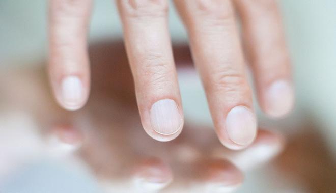 Những người có tuổi thọ ngắn thường có 4 dấu hiệu nhỏ này trên môi, mặt, tay, chân: Bạn cần kiểm tra xem mình có dấu hiệu nào không! - Ảnh 3.