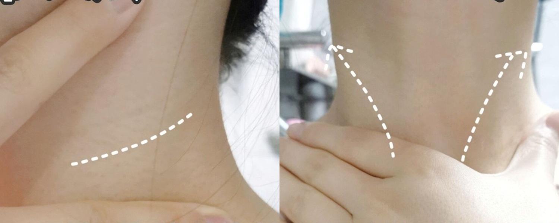 Vùng da cổ nhăn nheo của cô nàng này đã thay đổi hoàn toàn chỉ nhờ cách làm đơn giản vô cùng - Ảnh 3.