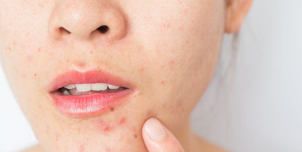 2 tuần ở nhà không có sẵn sản phẩm trị mụn, khi đó nước muối sinh lý và bước làm sạch nhẹ nhàng có thể chữa lành mọi hư tổn trên da - Ảnh 1.