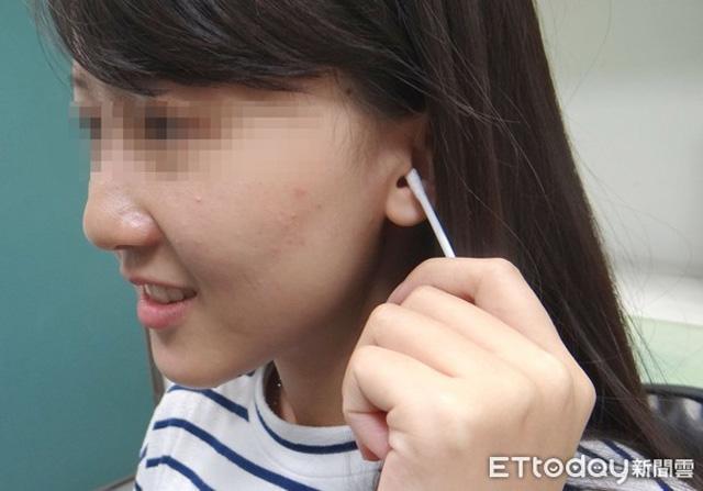 Cô gái 20 tuổi mất thính lực tạm thời do thói quen lấy ráy tai bằng tăm bông sau khi tắm - Ảnh 1.