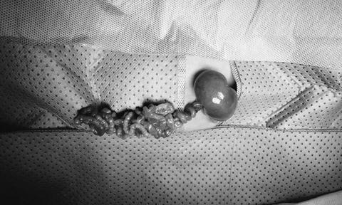 Khâu nối 4 đoạn ruột tí hon cứu bé gái sinh non 1,2 kg - Ảnh 2.