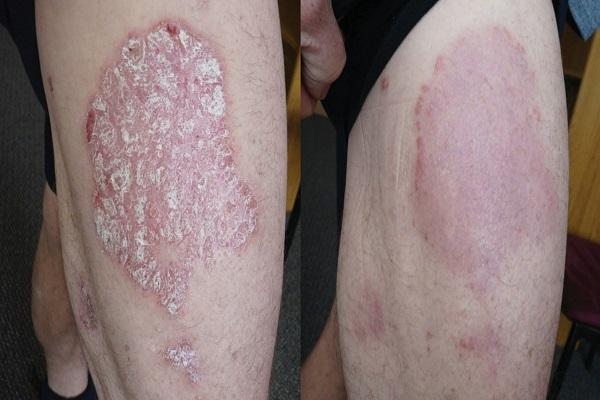 Điểm mặt bệnh về da thường gặp vào mùa hè - Ảnh 2.