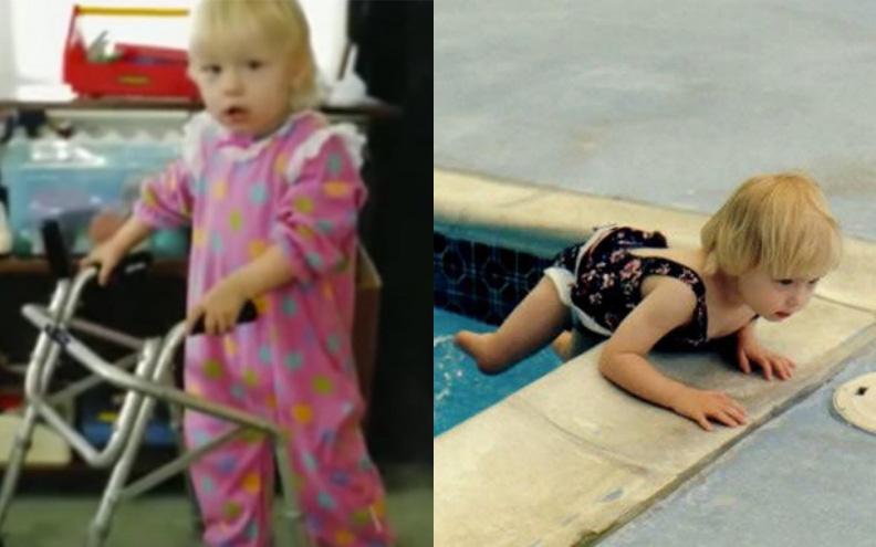 Mắc hội chứng hiếm phải cưa mất 2 chân, 20 năm sau, bé gái khiến cả thế giới phải ngưỡng mộ