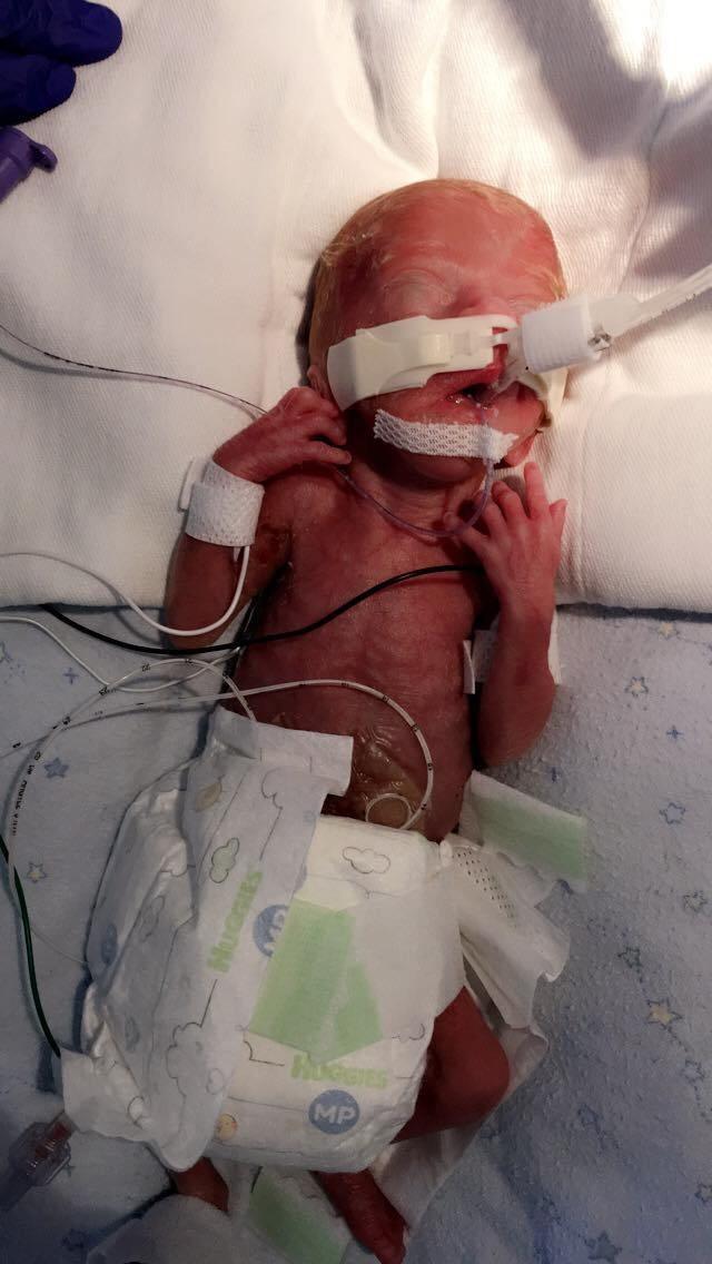 """Sinh non ở tuần 23 và chỉ nặng 490gram, bà mẹ đau khổ nghe tiên lượng xấu từ bác sĩ, nhưng hành trình """"lội ngược dòng"""" của bé trai đã khiến nhiều người phải kinh ngạc - Ảnh 1."""