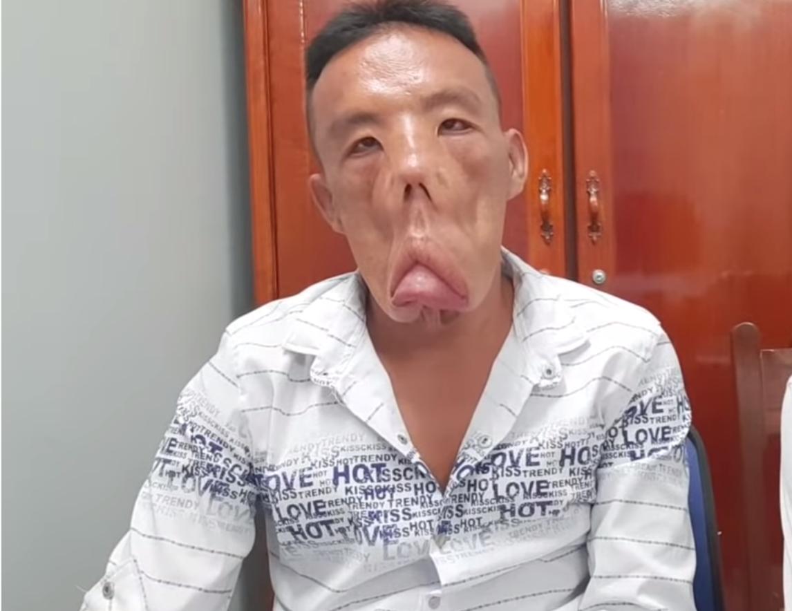 Chuyện người đàn ông mang khuôn mặt quỷ đến Sài Gòn tìm lại khuôn mặt người - Ảnh 1.