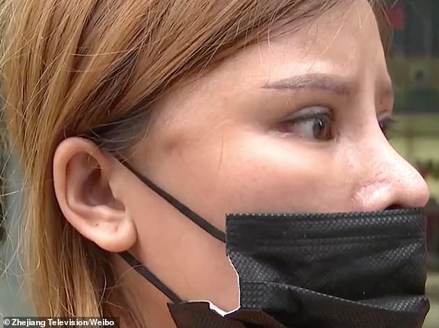 Bỏ 65 triệu làm thẩm mỹ, chị gái ức phát khóc vì nhận về khuôn mặt cau có khó chịu 24/7 - Ảnh 4.