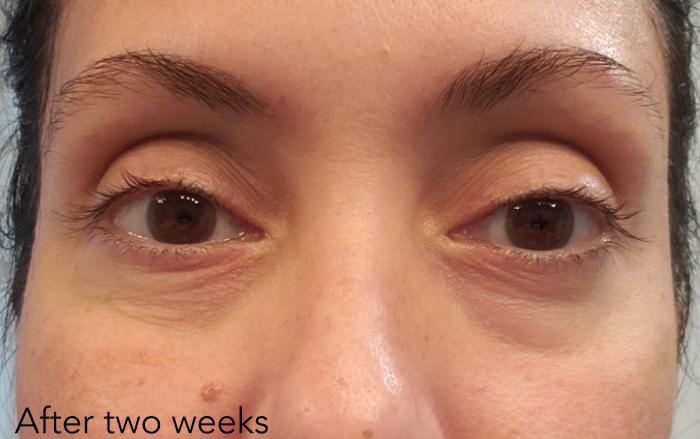 """Người phụ nữ 48 tuổi đã """"là phẳng"""" vùng da mắt thâm nhăn, khiến da mịn đẹp không tỳ vết nhờ loại kem mắt này - Ảnh 2."""